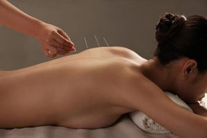 doctor-putting-acupuncture-needles-womans-shoulder